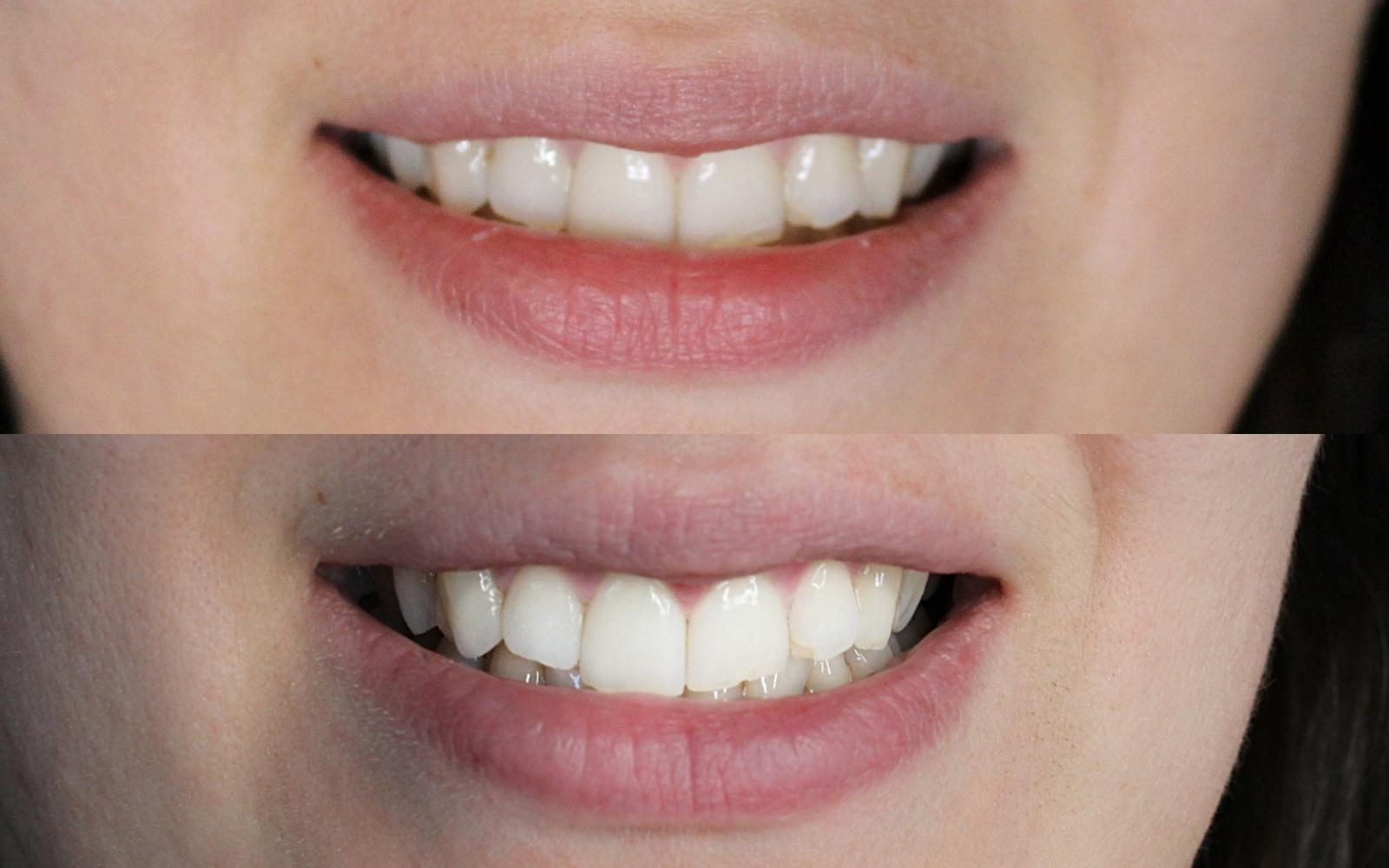 Białe zęby zCoco Glam